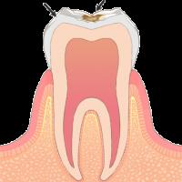 むし歯の初期症状C1
