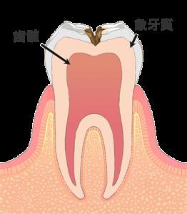 C2 象牙質に達したむし歯